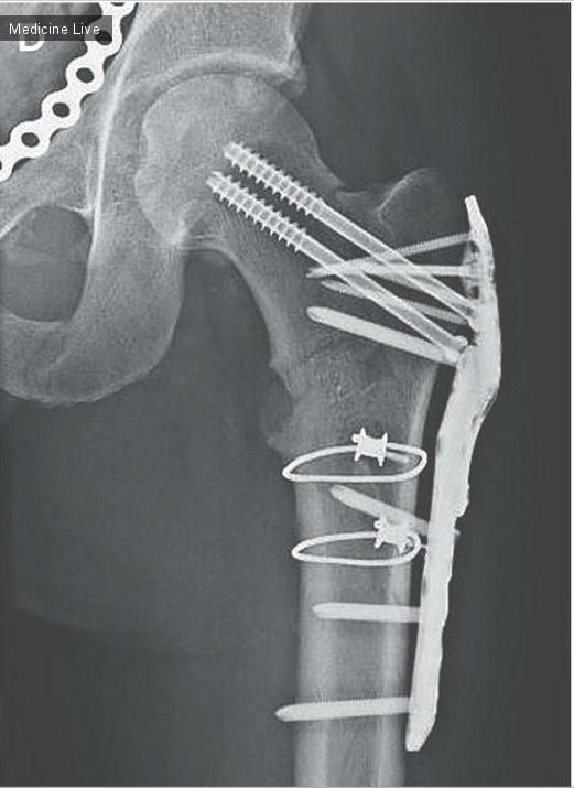 Интересный случай: Дислокация головки бедренной кости в мошонку