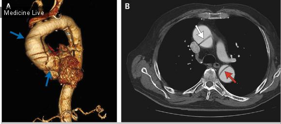 Интересный случай: Расслоение аорты