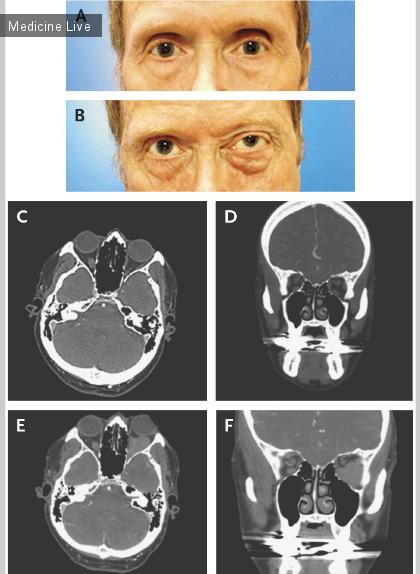 Интересный случай: Варикозная болезнь глаз