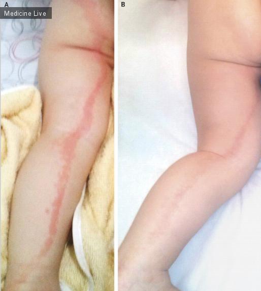 Интересный случай: Клинический случай поражения дерматома S1 вирусом Herpes Zoster у 19-месячного ребенка.