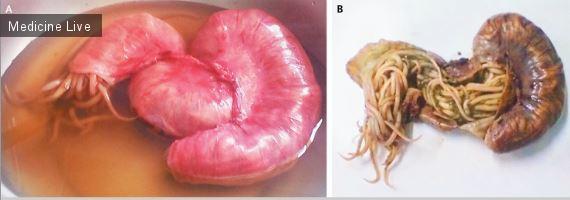 Интересный случай: Обструктивный аскаридоз подвздошной кишки