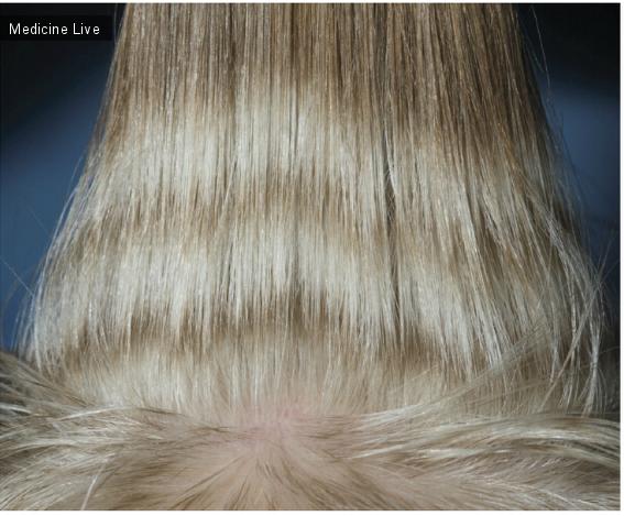 Интересный случай: Депигментация волос после химиотерапии