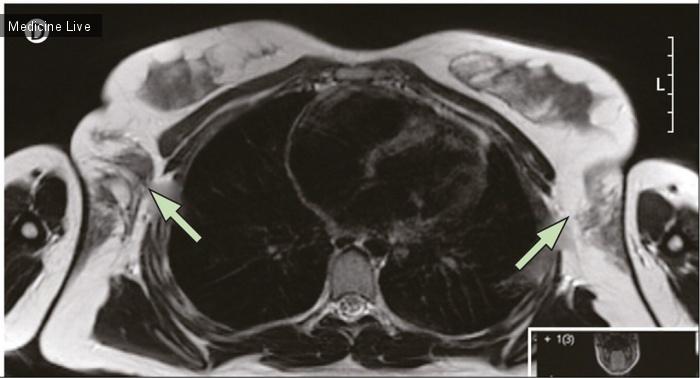 Интересный случай: Двусторонняя аксиллярная эктопия ткани молочных желез