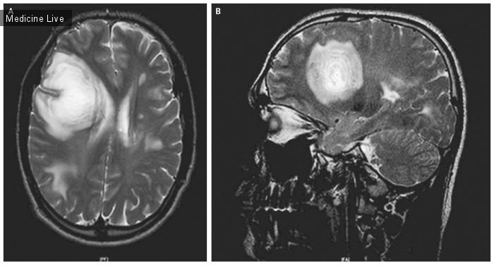 Интересный случай: Концентрический склероз Бало