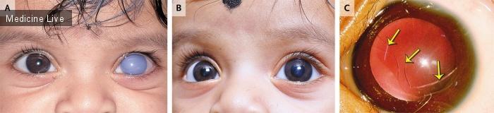 Интересный случай: Внезапное одностороннее помутнение роговицы у ребенка