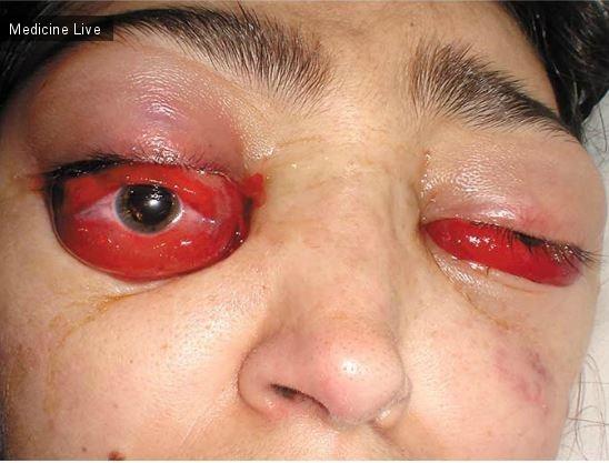 Интересный случай: Тромбоз кавернозного синуса