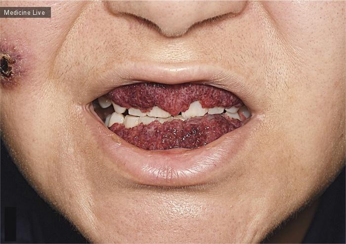 Интересный случай: Гранулематоз с полиангиитом (гранулематоз Вегенера)