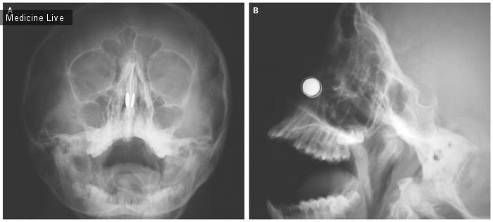 Интересный случай: Магниты в полости носа.