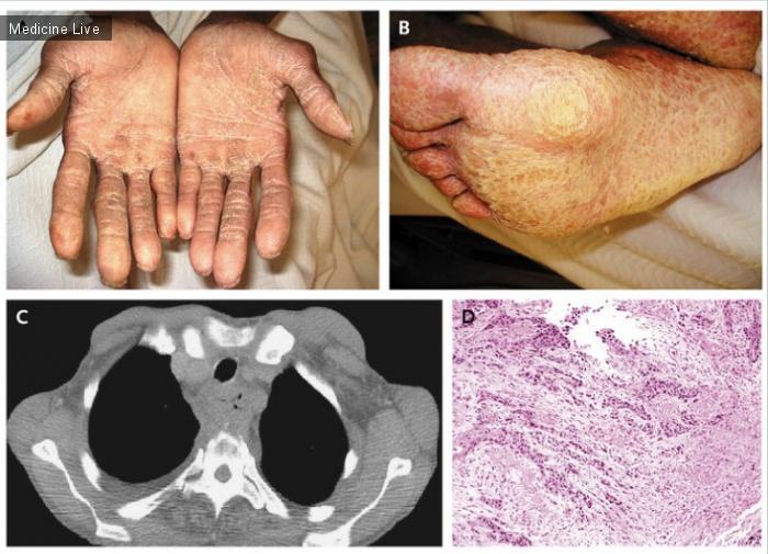 Интересный случай: Пальмоплантарная кератодермия, связанная с раком пищевода