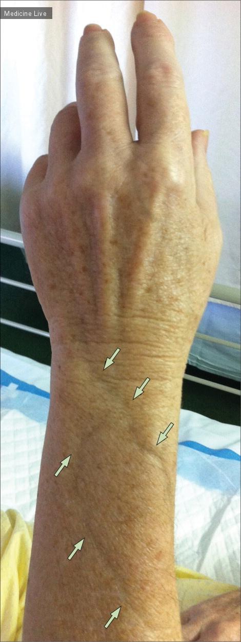 Интересный случай: Симптом «желобков» при эозинофильном фасциите