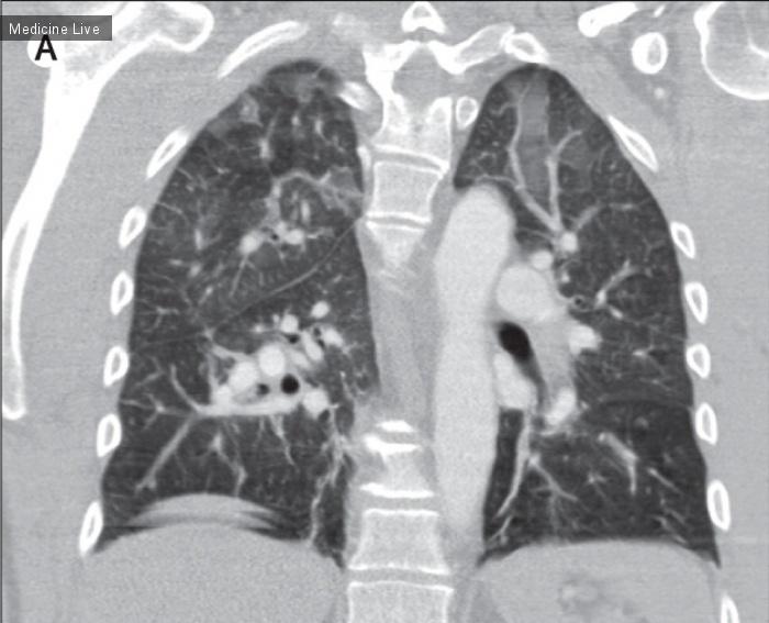 Интересный случай: Церебральная жировая эмболия после перелома костей