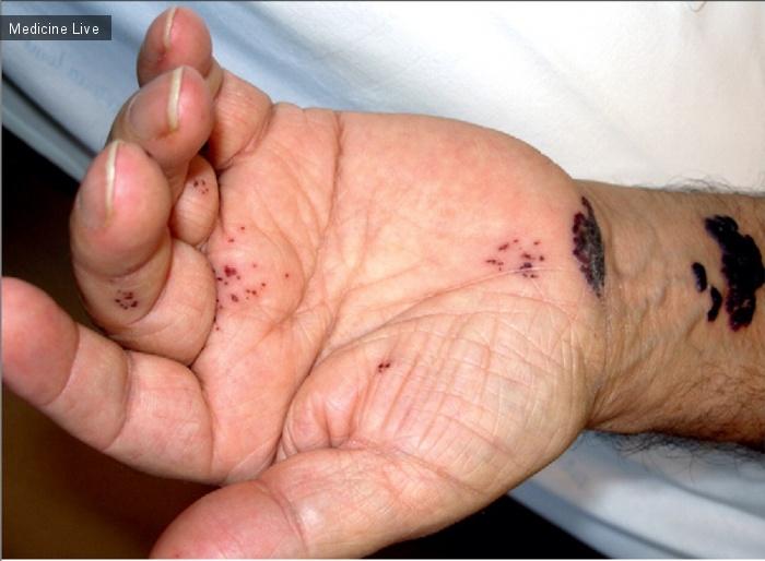 Интересный случай: Геморрагическая форма опоясывающего герпеса
