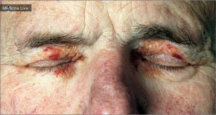 Интересный случай: Системный AL-амилоидоз