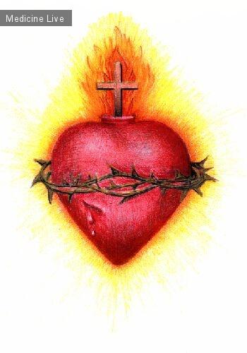 Интересный случай: «El corazon espinado»