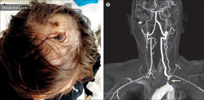 Интересный случай: Очаговая алопеция и ишемическая язва на волосистой части головы