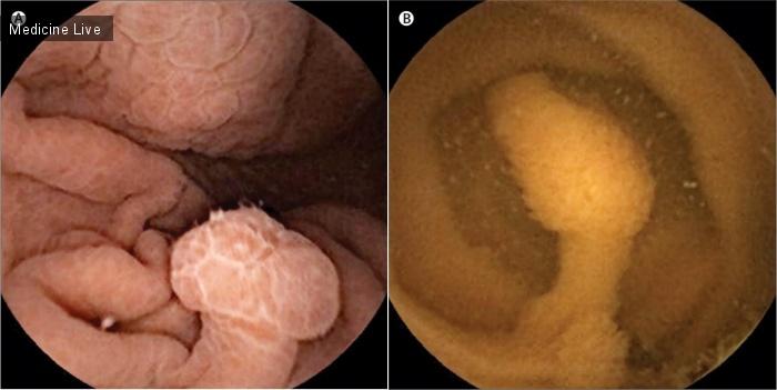Интересный случай: Видеокапсульная эндоскопия при синдроме Пейтца-Егерса