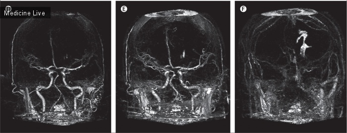 Интересный случай: Продолжающееся внутримозговое кровоизлияние при остром геморрагическом инсульте