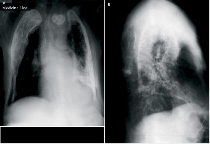 Интересный случай: Ограничения рентгенологии
