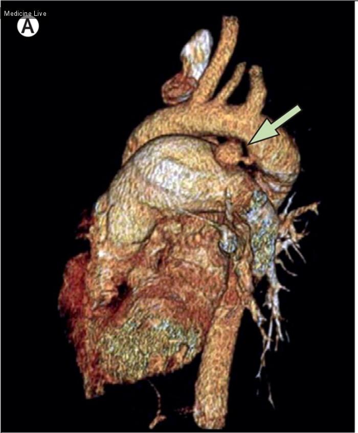 Интересный случай: Мешковидная аневризма незаращенного артериального протока
