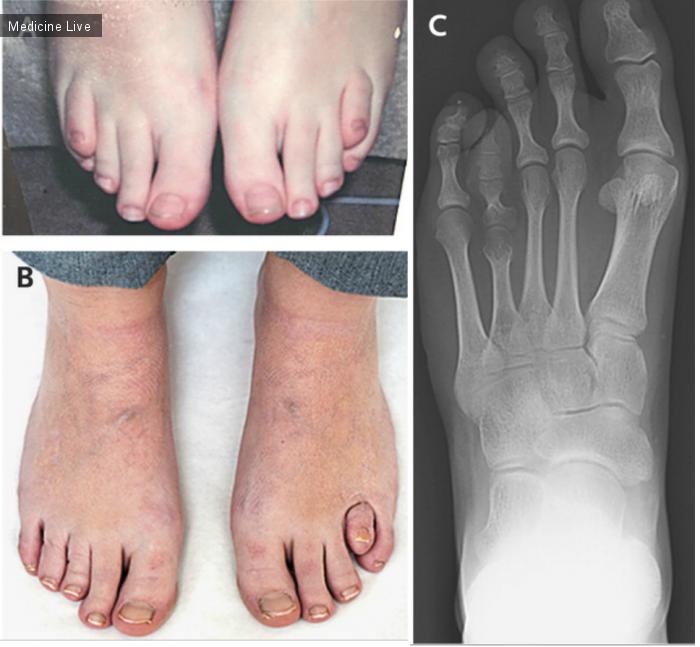 Интересный случай: Гипоплазия плюсневых костей - не только косметический дефект