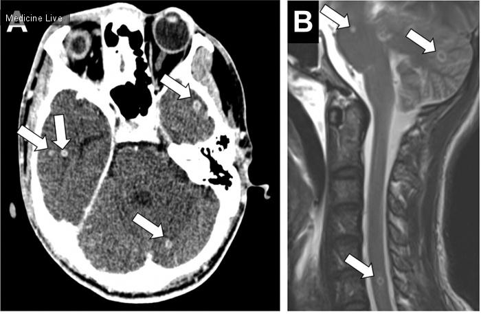 Интересный случай: Фтизиопульмонология: Эпилептический приступ, параплегия и кашель при диссеминированном туберкулезе