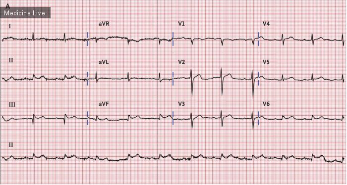 Интересный случай: Мезентериальная ишемия под маской острого инфаркта миокарда с подьемом сегмента ST