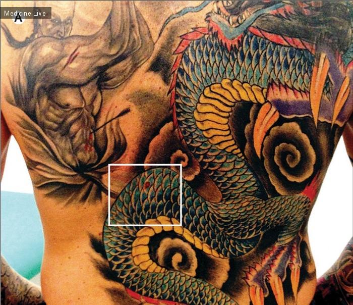 Интересный случай: Дерматовенерология: Меланома на татуировке в виде «китайского дракона»
