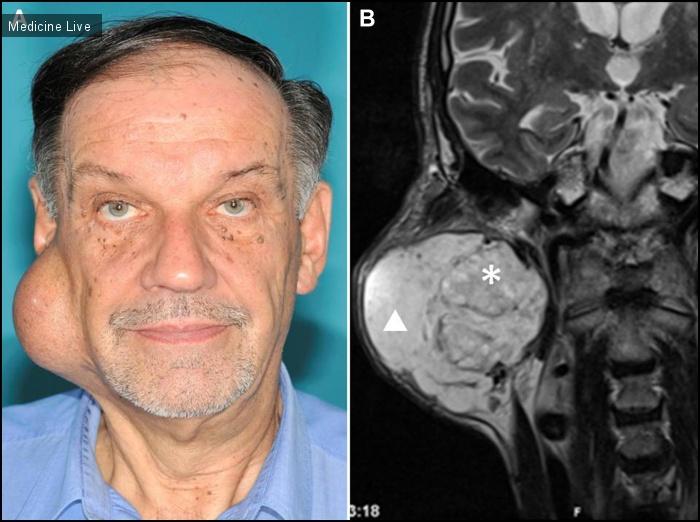 Интересный случай: Плеоморфная аденома околоушной слюнной железы