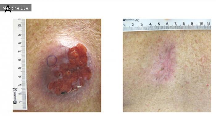 Интересный случай: Плоскоклеточная трансформация базальноклеточного рака с развитием лекарственной устойчивости