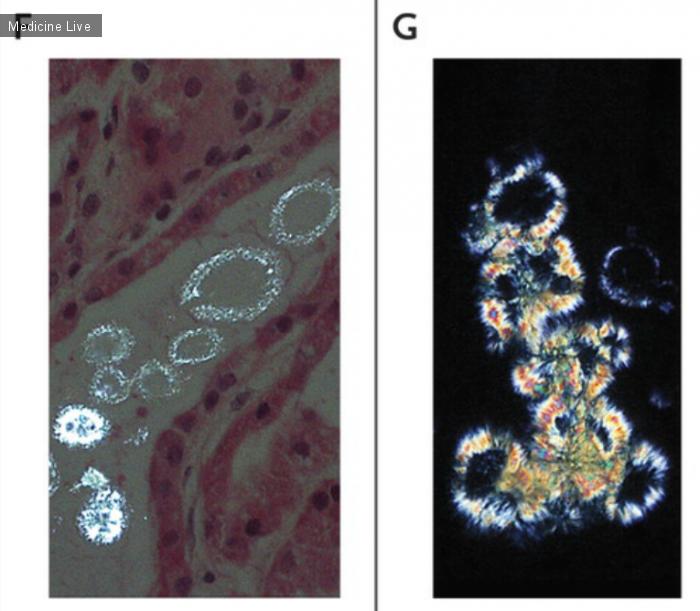 Интересный случай: Острая кристаллическая нефропатия, вызванная приемом метотрексата