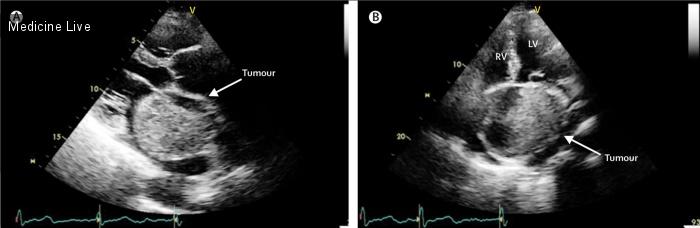 Интересный случай: Ангиосаркома сердца – неожиданная находка у пациента с фибрилляцией предсердий