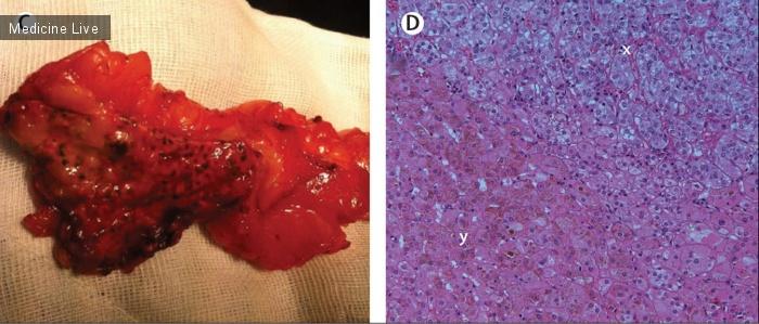 Интересный случай: Необычный Кушинг: первичная пигментная узловая гиперплазия надпочечников у 60-летней пациентки
