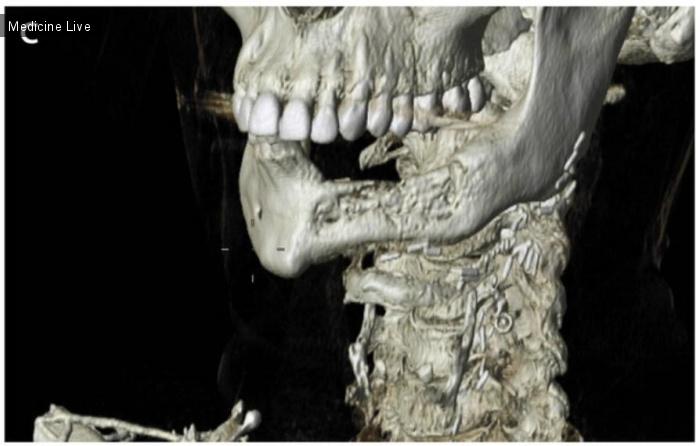 Интересный случай: Остеохемонекроз после реконструкции нижней челюсти