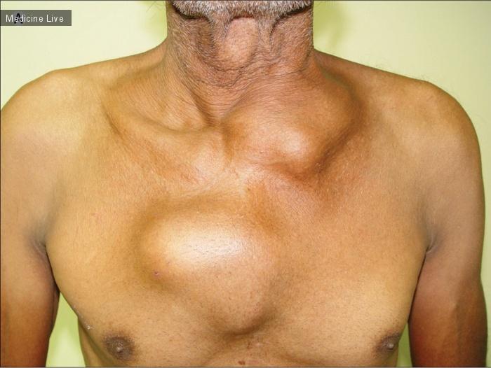 Интересный случай: Множественные узлы грудной стенки при лимфоме Беркитта взрослых