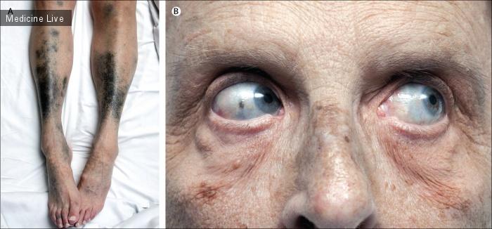 Интересный случай: Черно-синяя пигментация глаз и кожных покровов