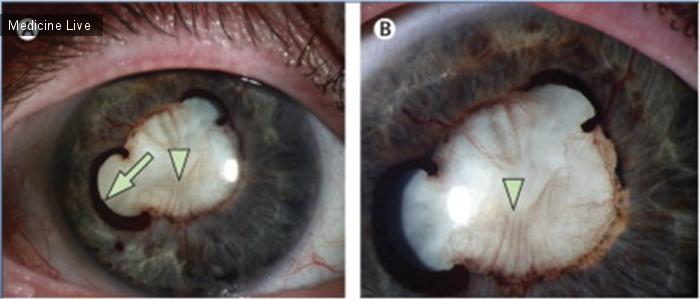 Интересный случай: Неоваскуляризация радужки на фоне диабетической ретинопатии, регрессировавшая на фоне лечения субконъюнктивальными анти-VEGF инъекциями