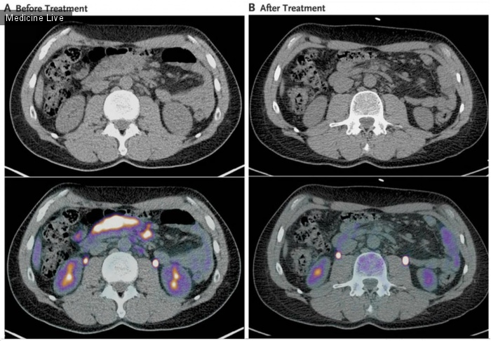 Интересный случай: Ремиссия фолликулярной лимфомы после лечения гепатита С