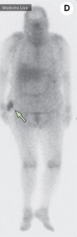 Интересный случай: Туморозный кальциноз при хронической почечной недостаточности