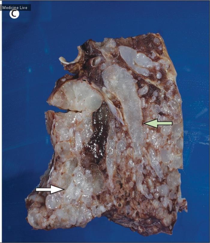 Интересный случай: Интраваскулярный рост опухолевого эмбола хондросаркомы