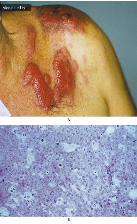 Интересный случай: Кожный очаг диффузной крупноклеточной B-клеточной лимфомы