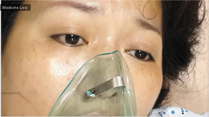 Интересный случай: Глазной миоклонус при серотониновом синдроме