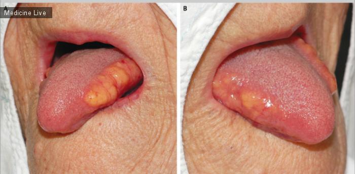 Интересный случай: Симметричный липоматоз языка