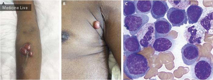 Интересный случай: Плазмоцитома и плазмоклеточная лейкемия