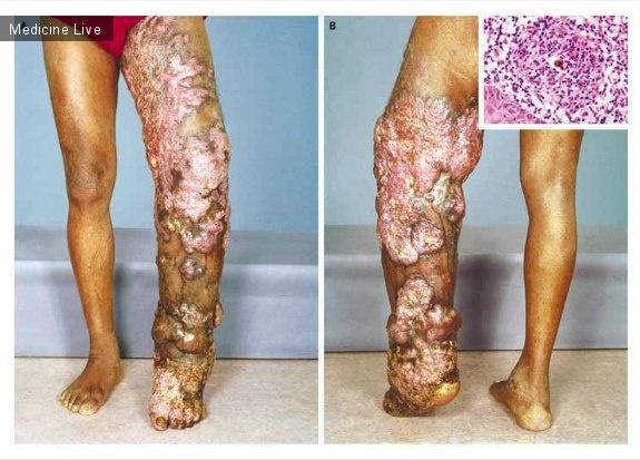 Интересный случай: Хромобластомикоз