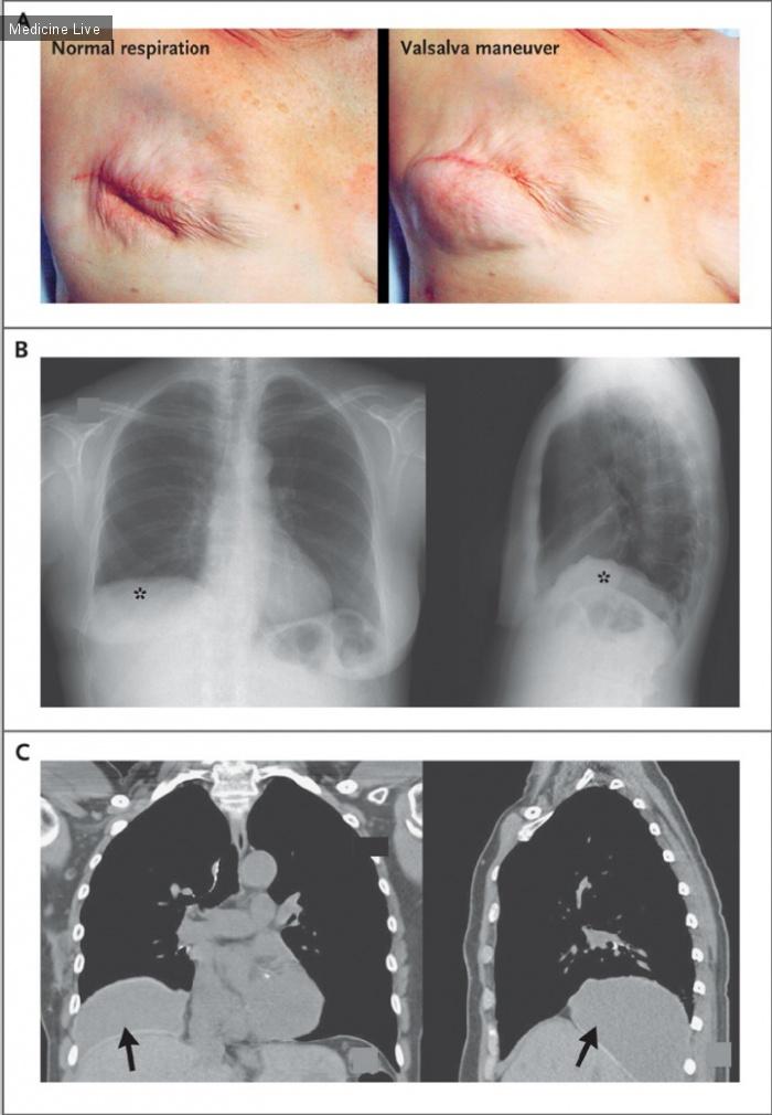 Интересный случай: Исчезновения грудного импланта во время занятия пилатесом