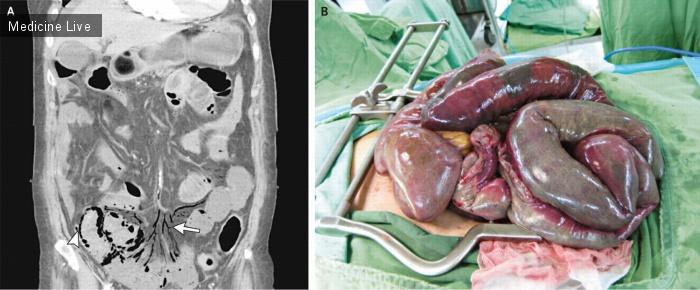 Интересный случай: Острое нарушение мезентериального кровообращения связанное с мерцательной аритмией