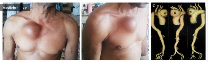 Интересный случай: Пульсирующая опухоль грудной клетки.