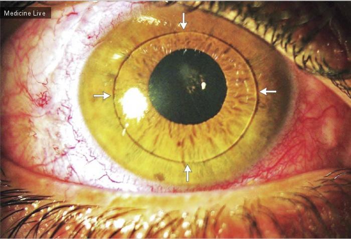 Интересный случай: Передняя дислокация интраокулярной линзы