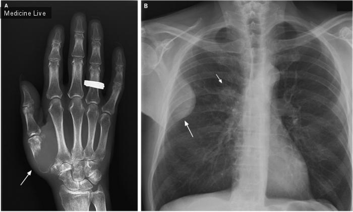 Интересный случай: Раздел им. KirillSavotchenko: Боль в пальце связанная с заболеванием легких