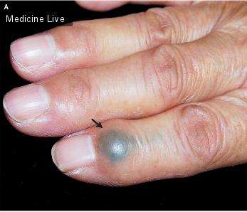 Интересный случай: Стержень от карандаша 50 лет провел в пальце женщины